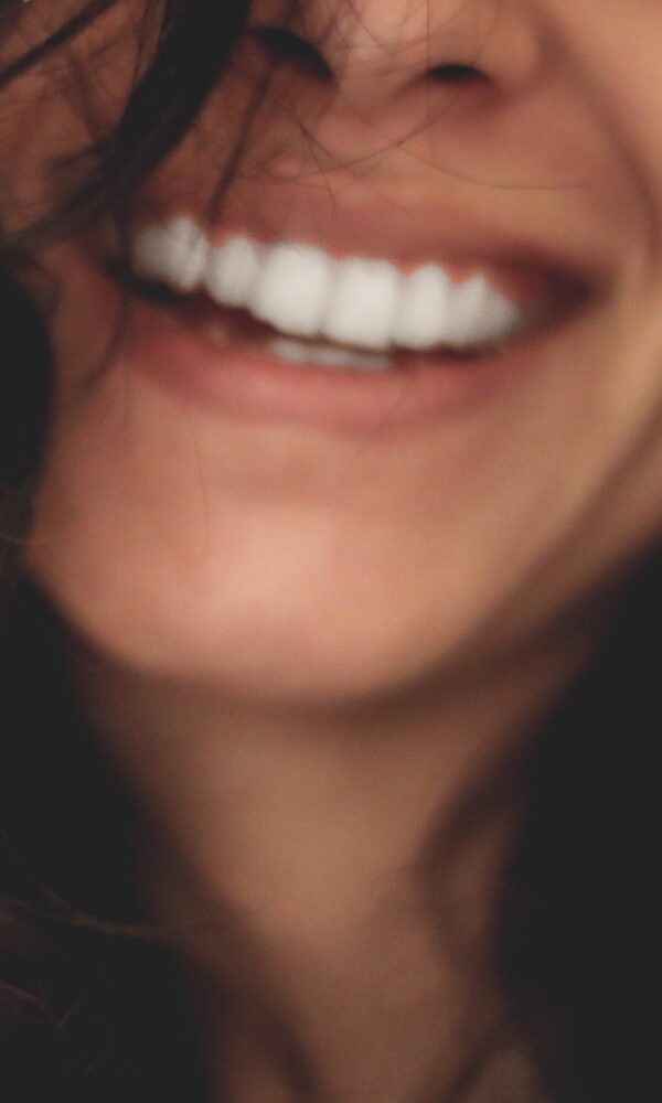 Blanqueamiento Lora Boutique Dental
