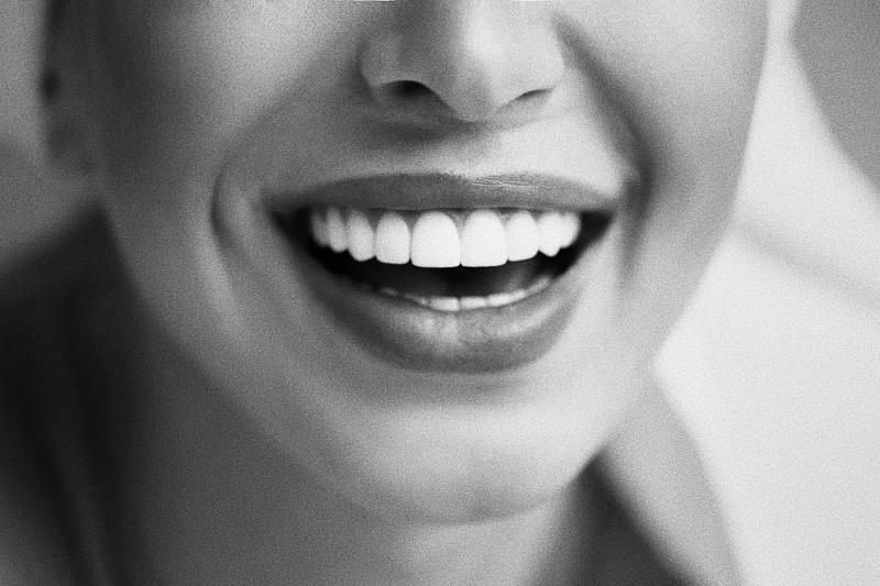 carillas-dentales-barcelona