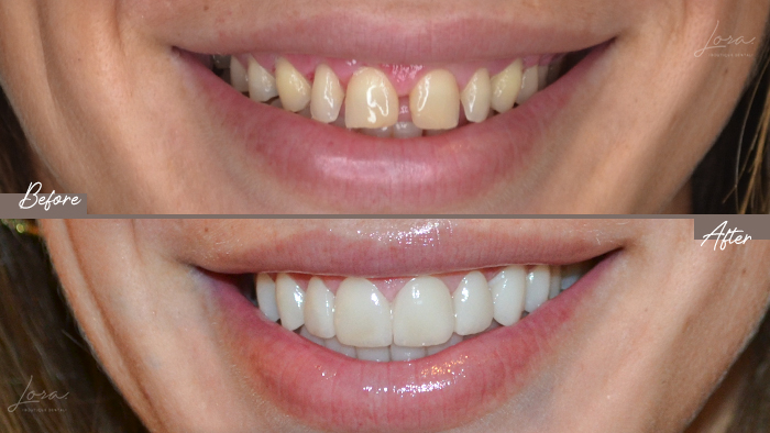antes-despues-carillas-dentales-clinica-dental-barcelona-lora