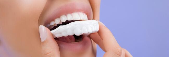 blanqueamiento-dental-en-casa-barcelona