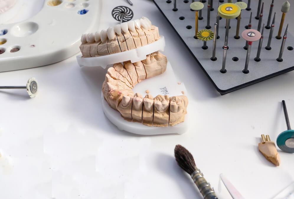 estetica-dental-barcelona