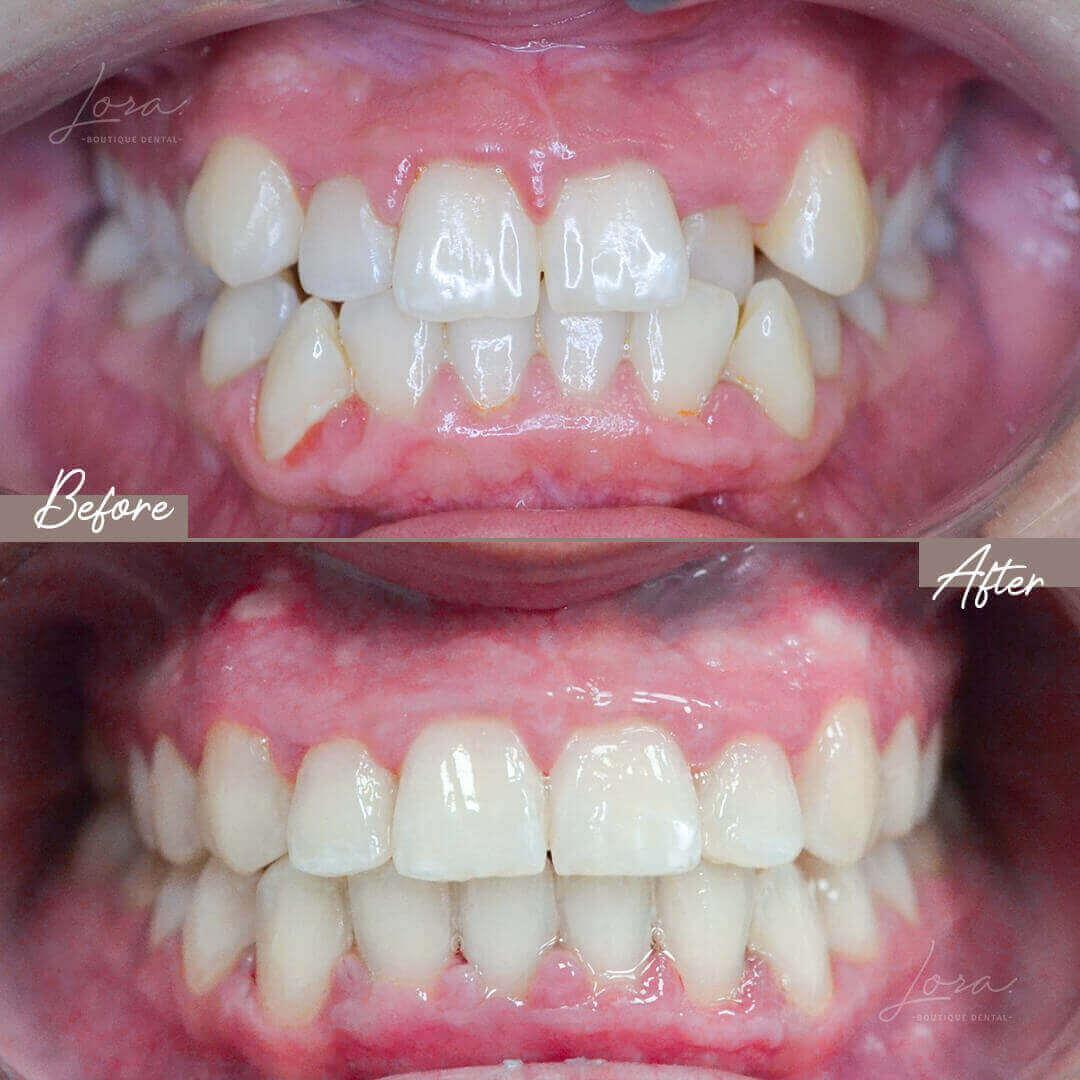 antes-despues-ortodoncia-invisible-barcelona