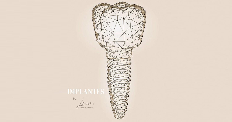 especialistas-implantes-dentales-barcelona