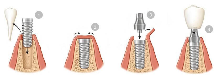 mejores-tipos-de-implantes-dentales-barcelona