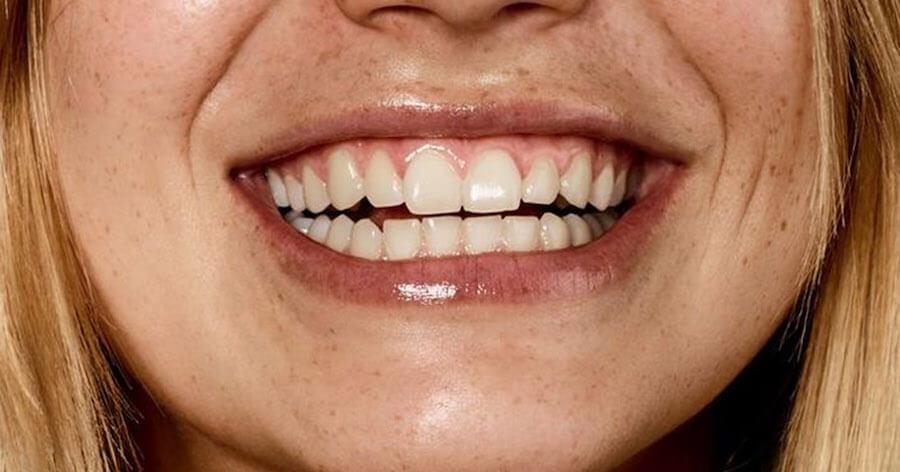 solucion-sonrisa-gingival-barcelona-lora-boutique-dental