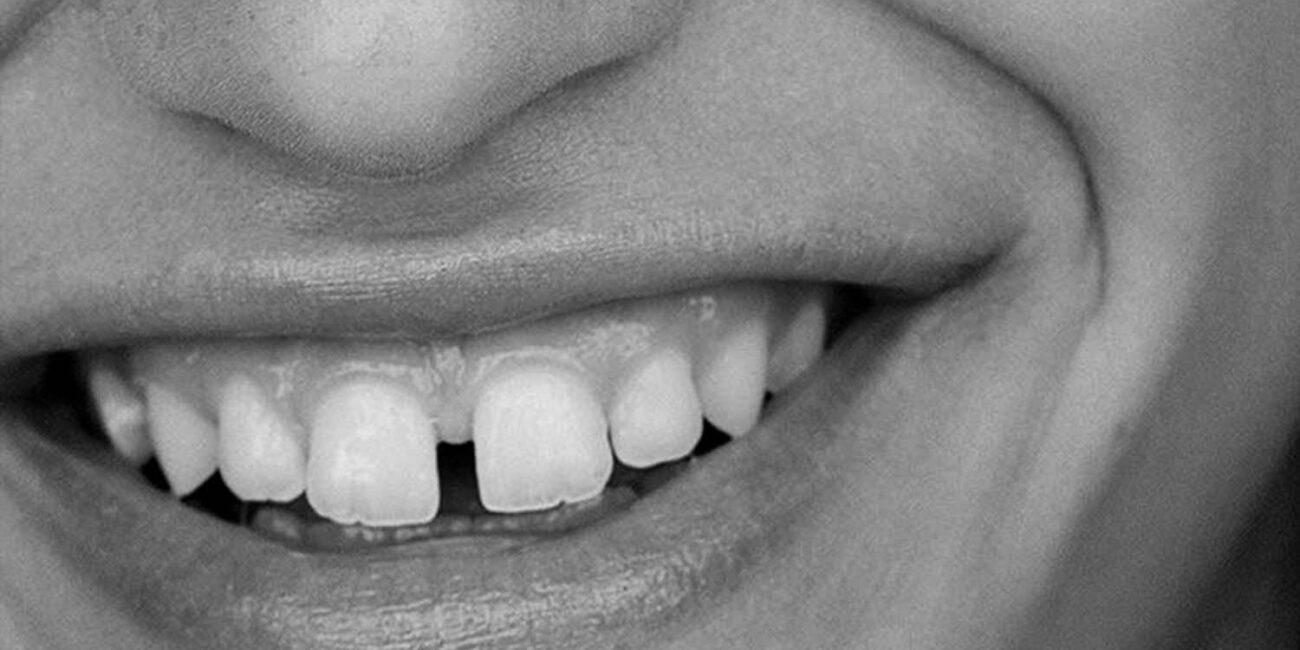 dientes-cortos-desgastados-solucion