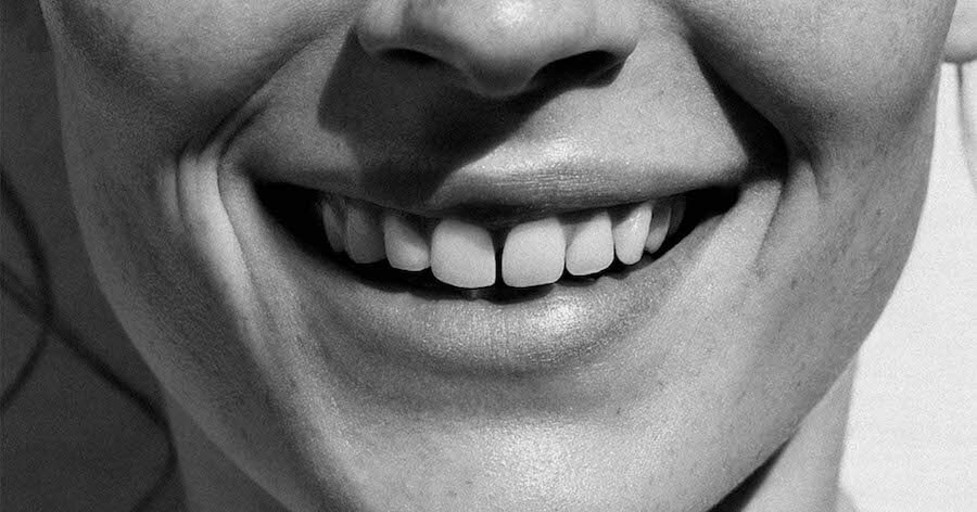 ortodoncia-estetica-invisalign-zafiro-barcelona-lora-boutique