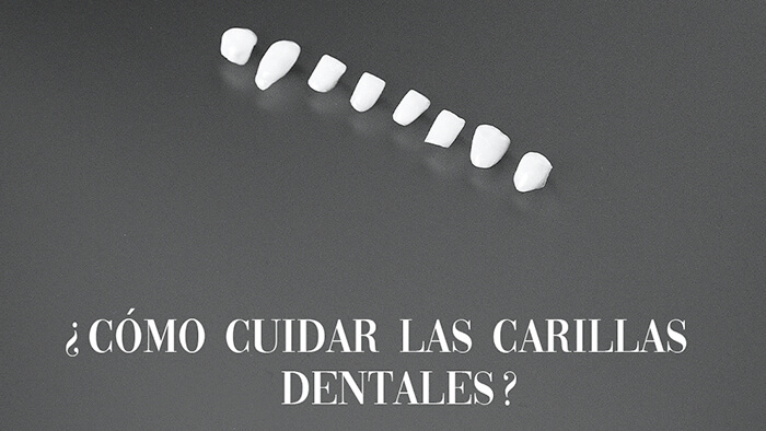 como-cuidar-las-carillas-dentales-y-microcarillas